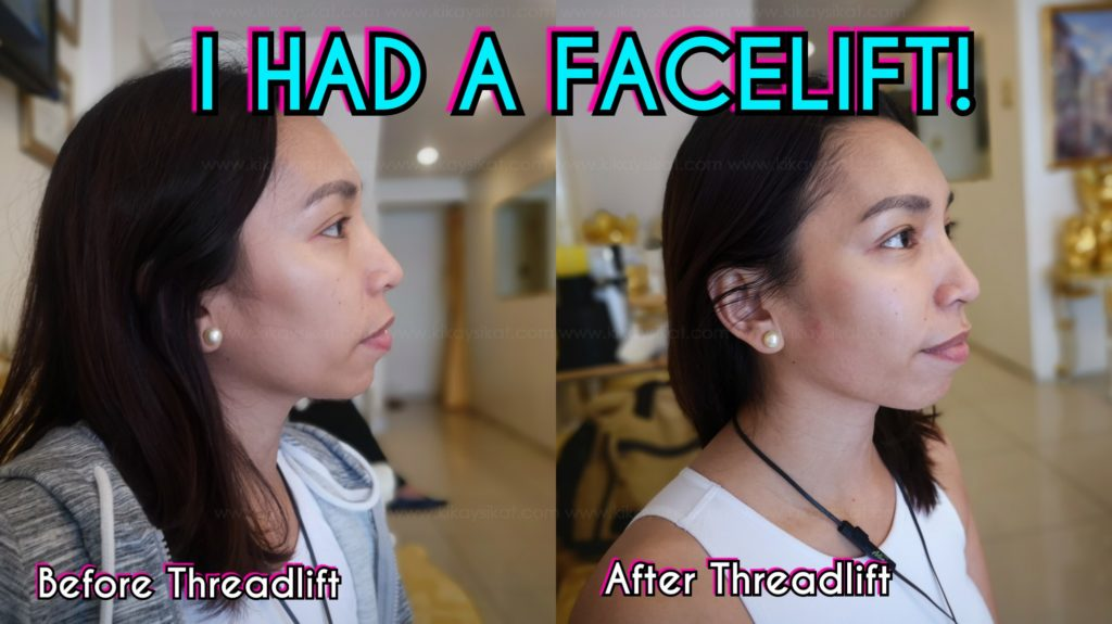 thread-lift-before-after-face-lift-9